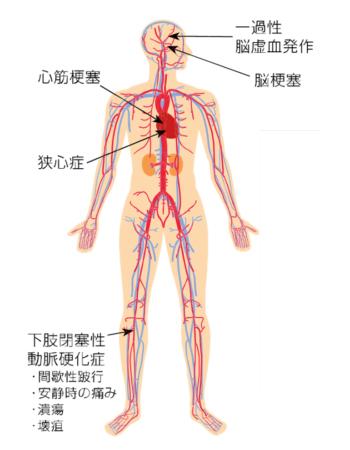 大動脈・末梢血管チーム | 関西...