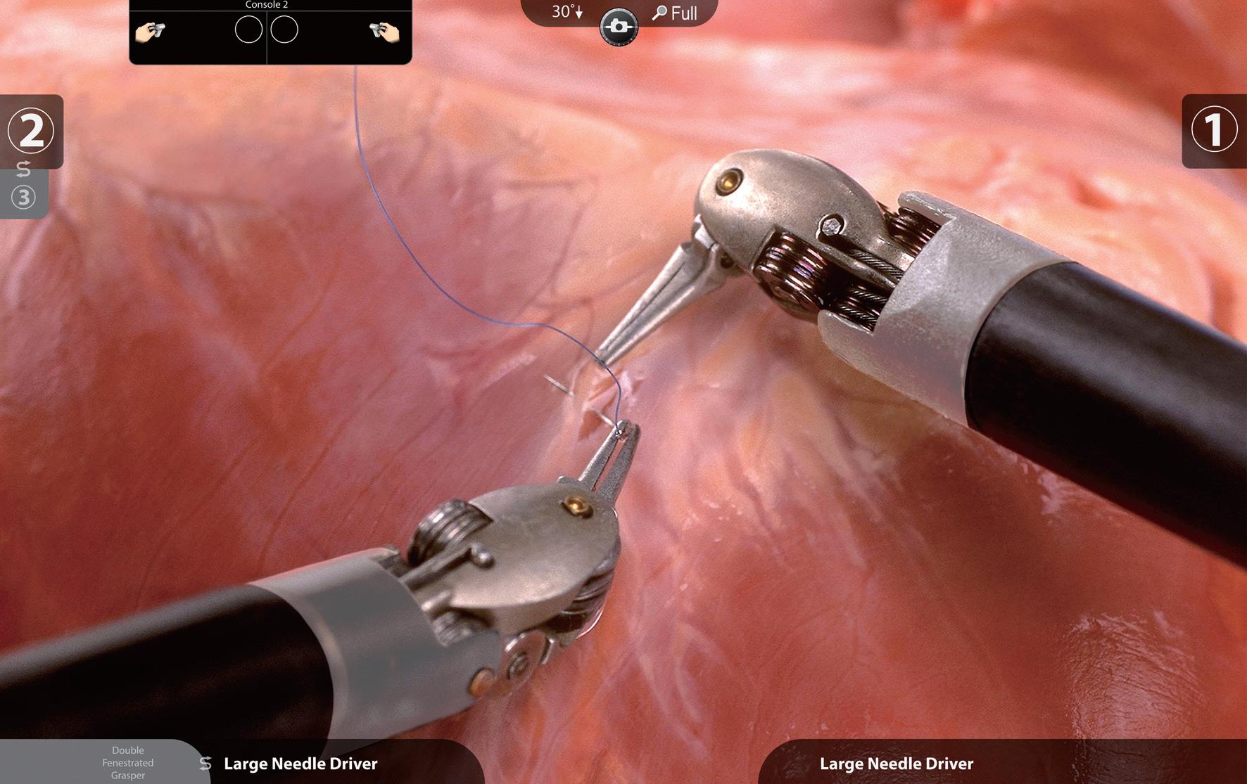 手術支援ロボット(ダヴィンチ)による前立腺全摘除術①