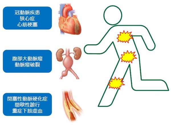 血管疾患に対する治療方針・体制について