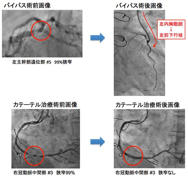 冠動脈疾患、バイパス術+バルーン拡張術