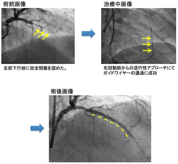 冠冠動脈疾患、バルーン拡張・ステント留置術