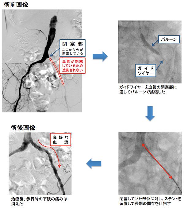 閉塞性動脈硬化症、ステント留置術