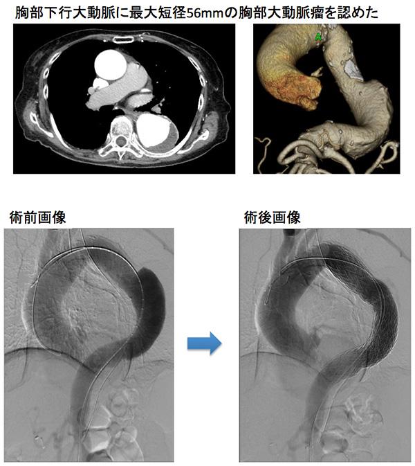 胸部大動脈瘤、ステントグラフト内装術