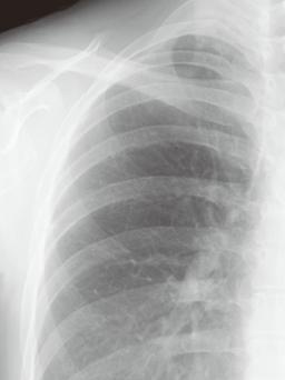 画像胸部CT