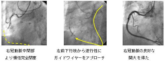 右冠動脈の慢性完全閉塞病変
