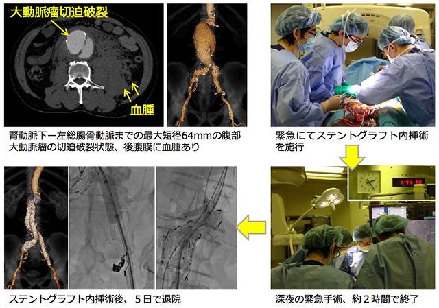 腹部大動脈瘤に対するステントグラフト内挿術