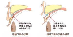さぷりめんと図6