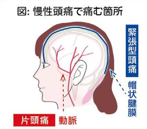 慢性の頭痛②