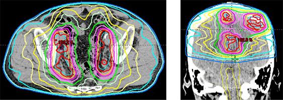 骨盤リンパ節転移のVMAT