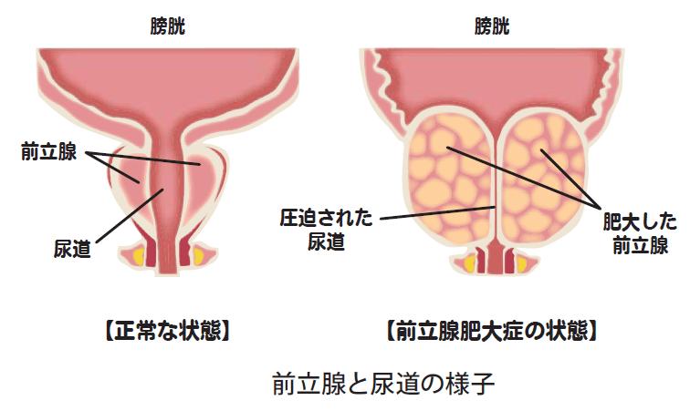 前立腺 肥大 症