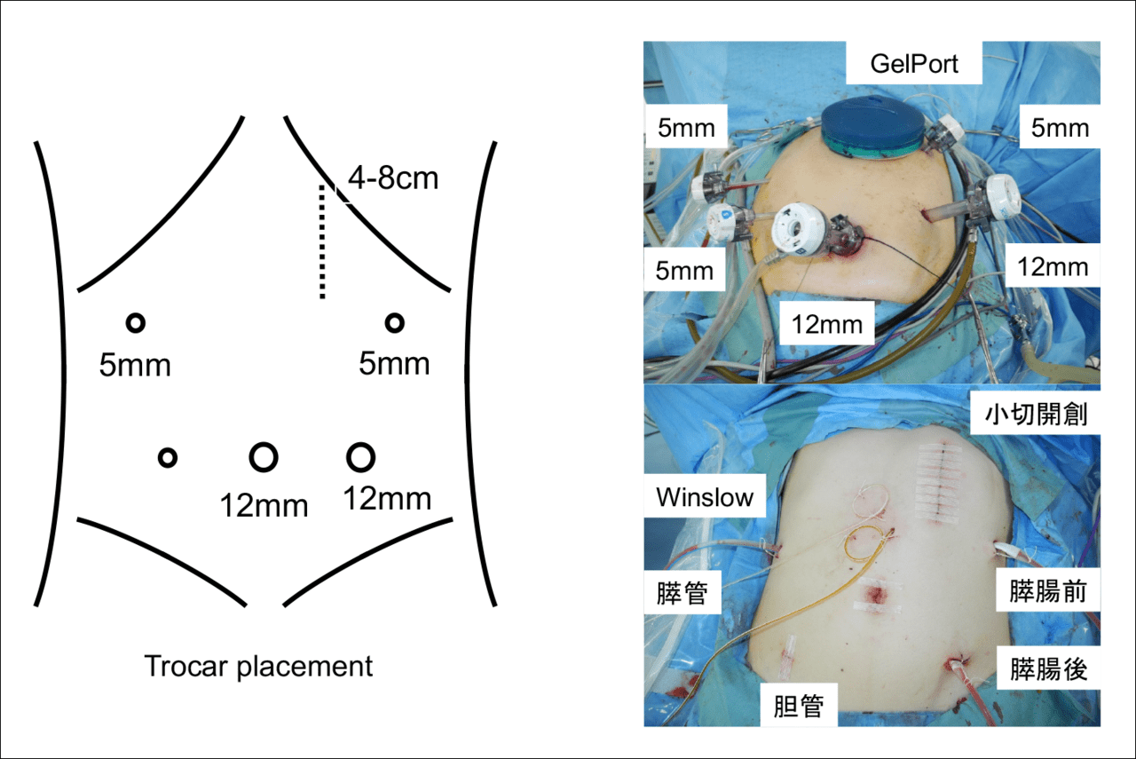 図3 腹腔鏡下膵頭十二指腸切除術の腹部の様子