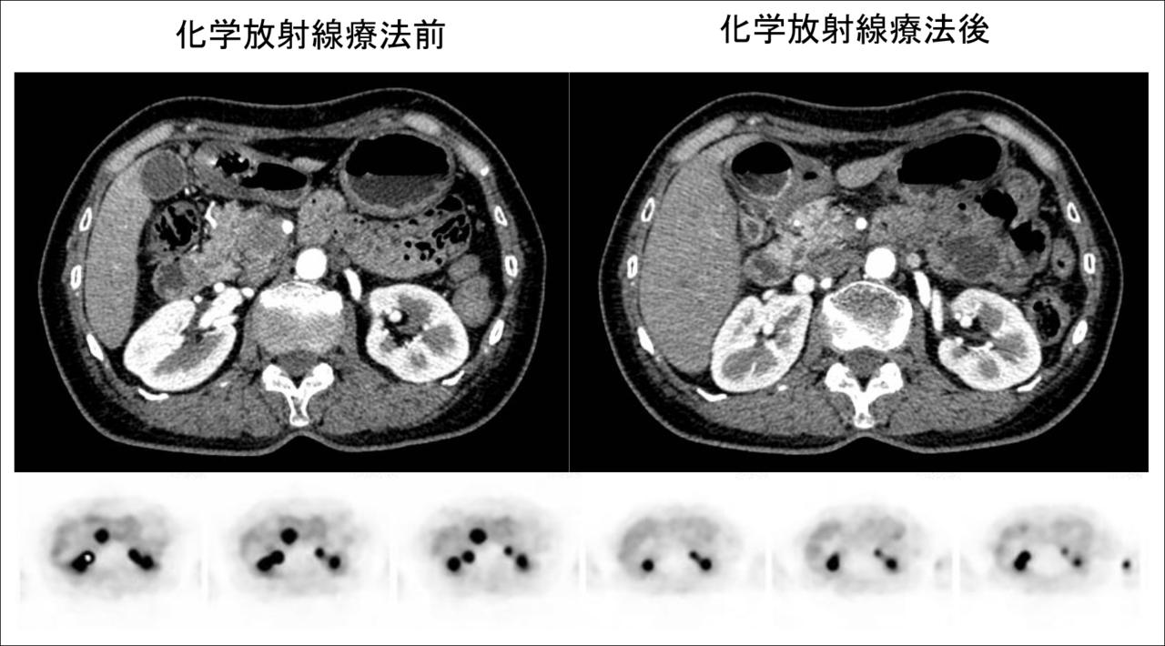 図4 化学放射線療法後切除可能となった症例