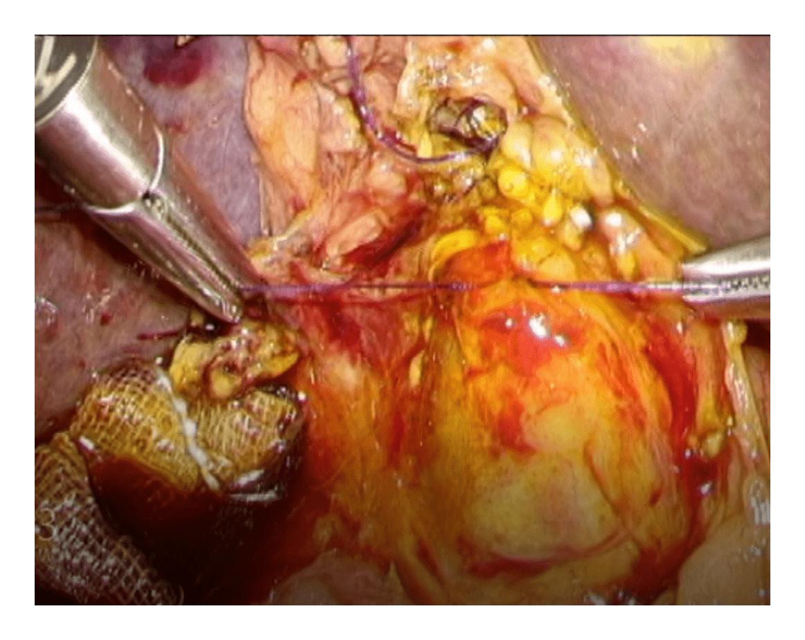 図6 腹腔鏡下総胆管切開切石術(胆管縫合)