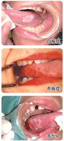 口腔がん・舌がんについて②
