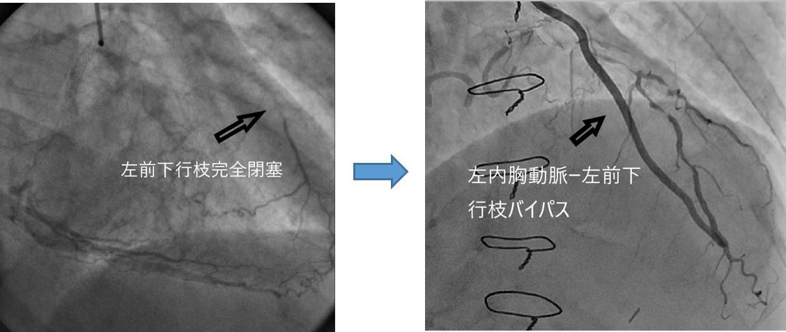 心臓血管外科_画像